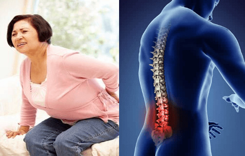 Lower Back Pain Cause and Cure